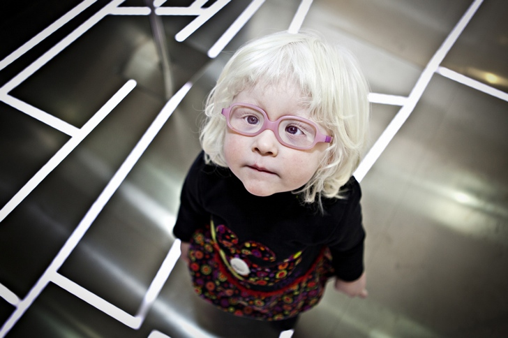 albino-%C3%A7ocuk-foto%C4%9Fraf.jpg?resize=728%2C484
