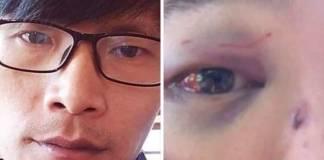 guang-chen-coronavirus-