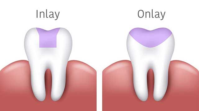 Inlay et onlay: 2 options d'obturation indirectes