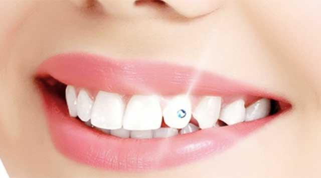 Bijoux dentaires : sont-ils nocifs pour la santé des dents ?