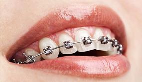 orthodontrix