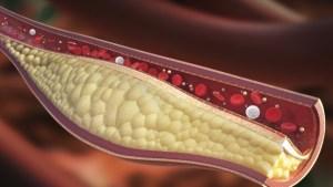 Cholesterol verlagen