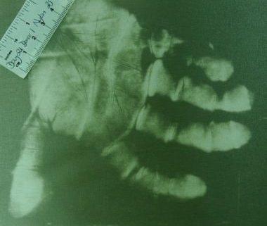 Lifting Fingerprints: