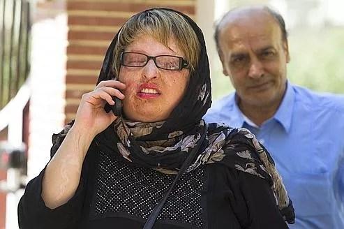 Ameneh Bahrami a été défigurée et rendue aveugle par l'acide en 2004.