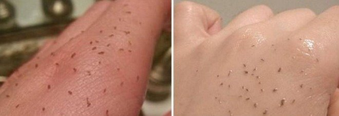 Skin Gritting Il Nuovo Metodo Per Rimuovere I Punti Neri