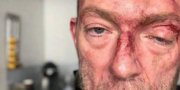 Vincent Cassel visage en sang, la photo choc !