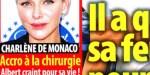 Charlène de Monaco, une chirurgie esthétique qui mal tournée, rumeur alimentée par Stéphane Bern (photo)