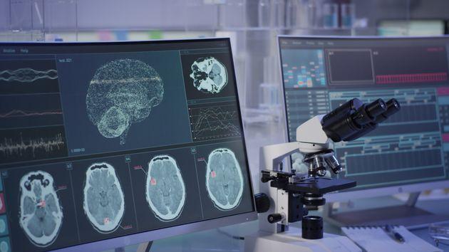Neurodroits : le Chili veut protéger le cerveau de ses citoyens contre les technologies