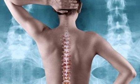 svetový deň osteoporózy