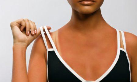 Čo pomáha na slnkom spálenú pokožku?