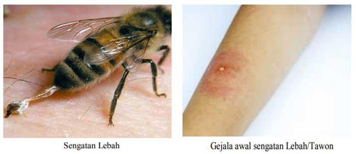 sengatan lebah