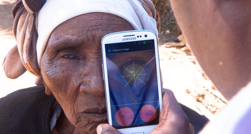 Pessoa utilizando o celular para examinar olho de paciente