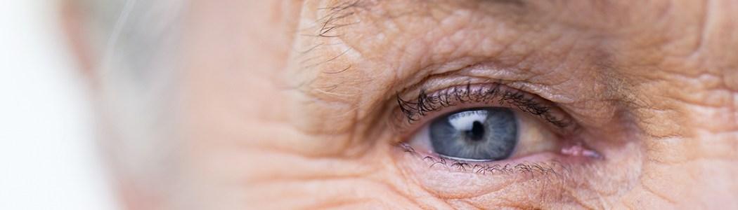 o que e neuropatia optica