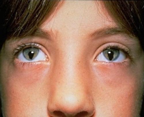 garoto com sindrome do olho de gato