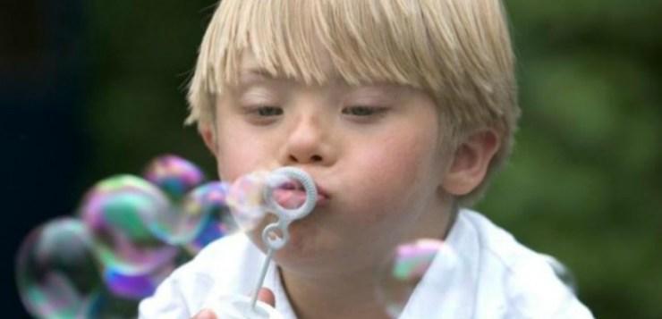 La Sindrome di Down: Che cos'è ?