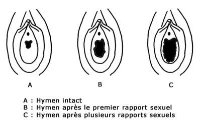 virginité hymen vierge et après un rapport