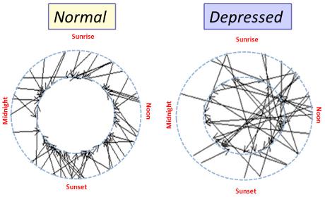 Il ritmo circadiano anomalo del cervello depresso