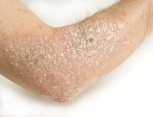 Le Psoriasis au naturel : on fait comment ...