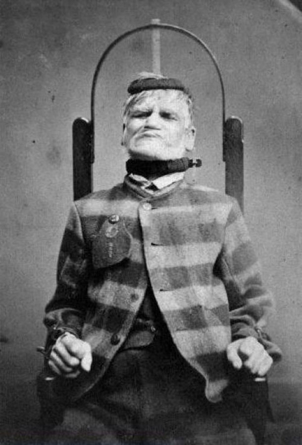 Patient-in-restraint-chair-at-the-West-Riding-Lunatic-Asylum-Wakefield-Yorkshire-ca.-1869