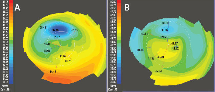 Figure 5. The left image shows a highly aberrated cornea following complicated LASIK (A). Two courses of CATz-driven PRK resulted in the improved topography shown on the right (B). The patient gained a line of BSCVA and can now tolerated a contact lens.