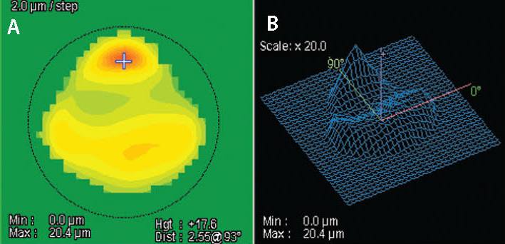 Figure 6. NIDEK's Final Fit Software shows the theoretical ablation map needed to regularize the astigmatism in this challenging case (A). The image on the right demonstrates the tissue elevation addressed in 3D (B).