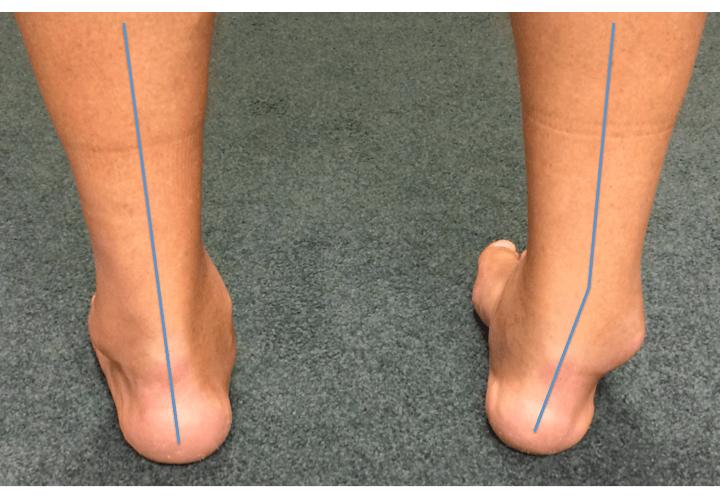 Ankle Arthritis | Arthritis Around The Ankle Joint | LFAC