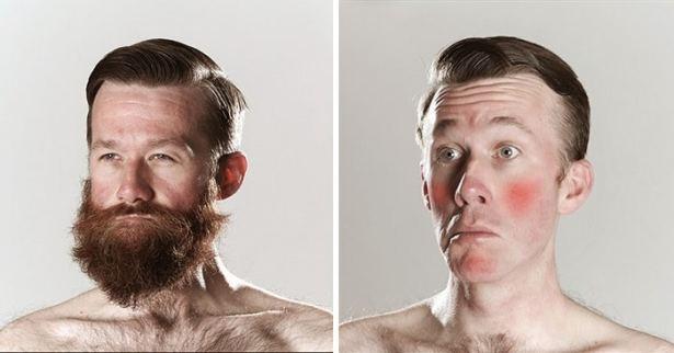 Faites-vous pousser une barbe de hipster pour éviter les irritations