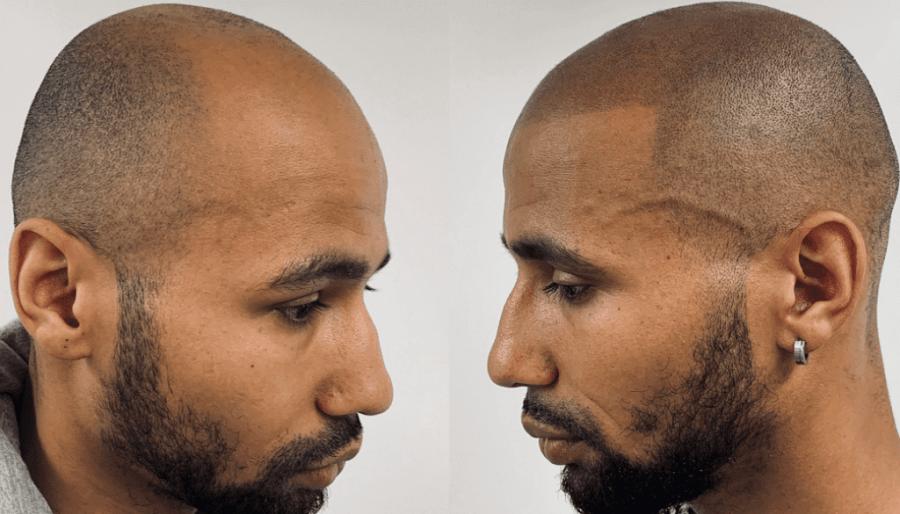 Tatouage du cuir chevelu homme
