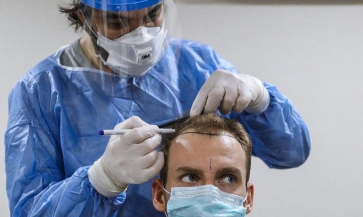 Docteur Cinik, docteur spécialiste de la greffe de cheveux en Turquie