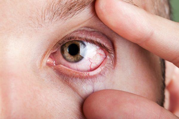 Eye Itching