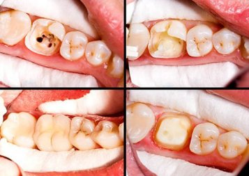 Benefits of Root Canal Treatment | Liberty Village Dental Care