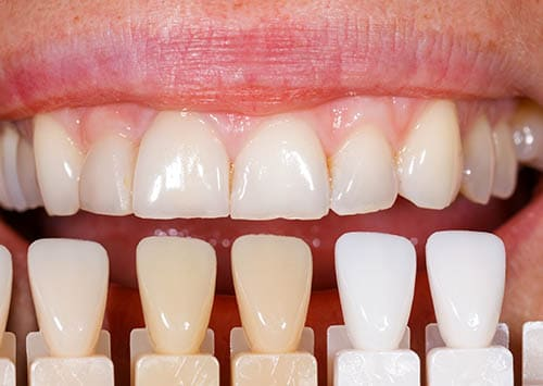Teeth Whitening dentist Victorville CA