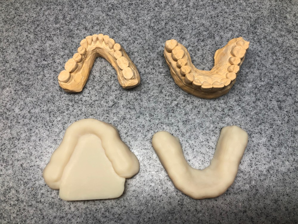 Assortment of dental casts and resin 3D printed intraoral stent guards