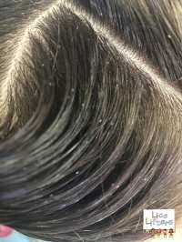 Lice Removal Services Company | Head Lice Pictures | Lice ...