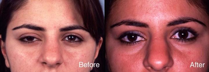 Eyelid Case Stus Ptosis Surgery Beverly Hills Los Angeles