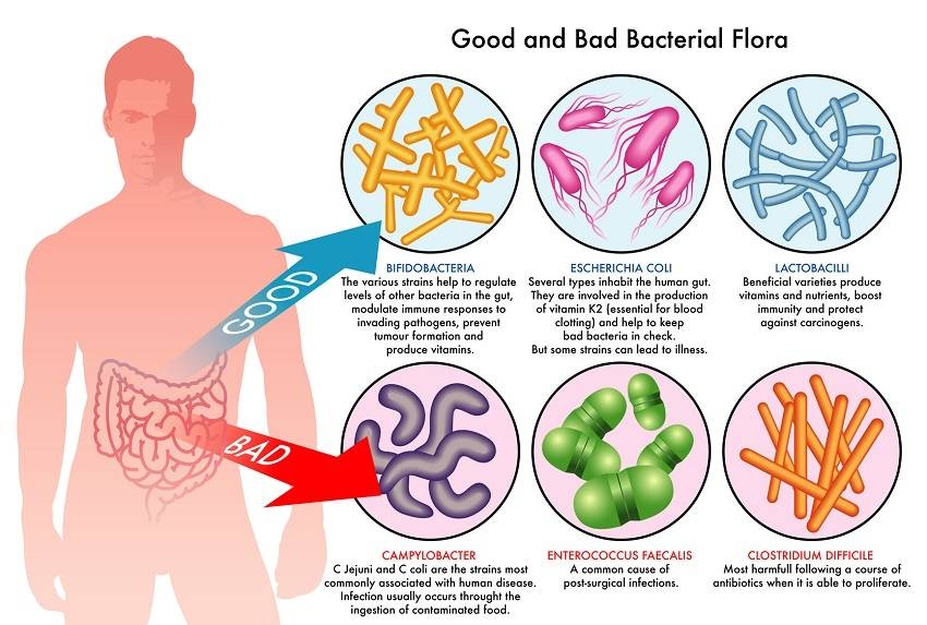 Signs You Should Be Taking a Probiotic