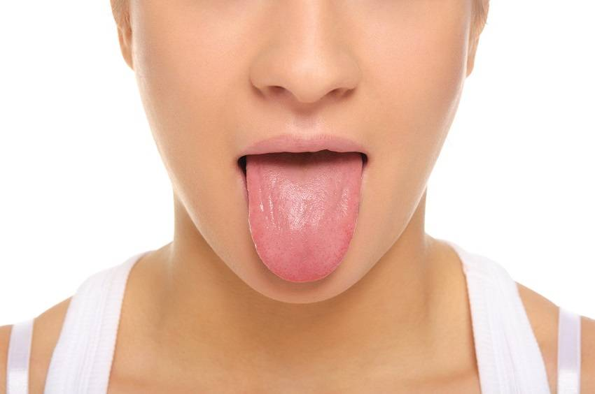 Color of Your Tongue