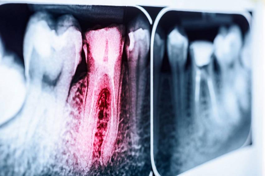 Effective Ways to Relieve Sensitive Teeth