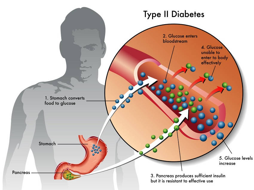 early diabetes symptoms you probably didn't know about but should, Human Body