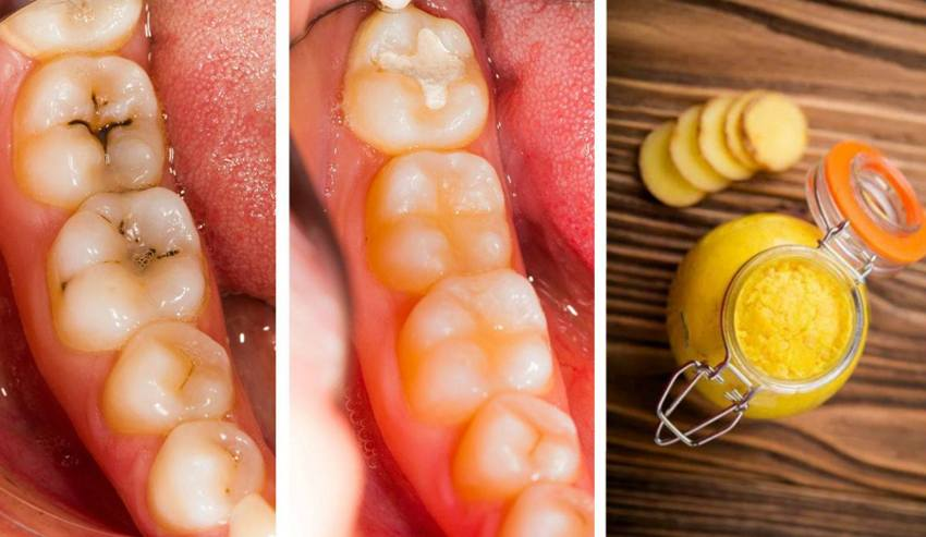 How to restore tooth enamel naturally at home