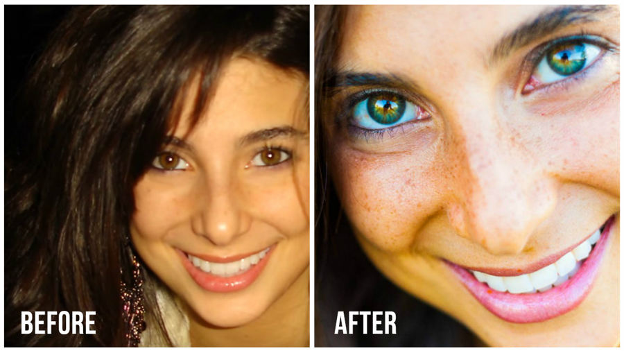 How Raw Food Diet Changed This Woman S Eye Color