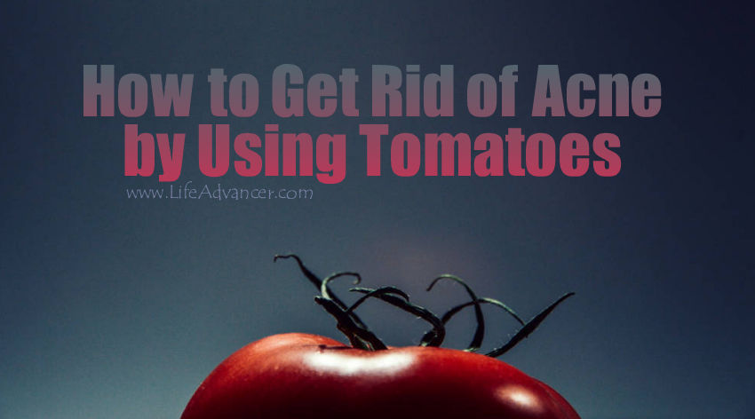 Get Rid of Acne Using Tomatoes