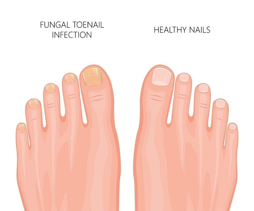 Treatments for Yellow Toenails Caused by Fungus