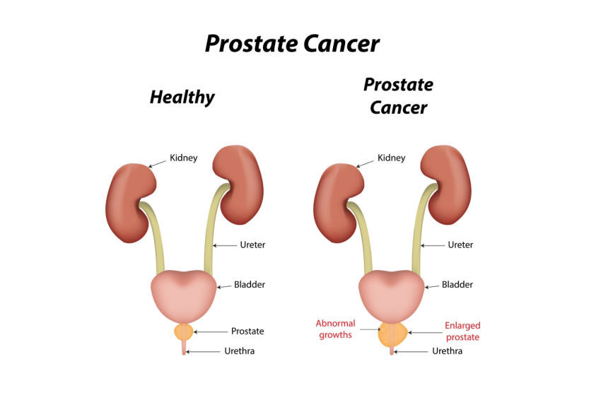 Herbal Medicine For Prostrate Enlargement