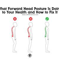What Forward Head Posture Is Doing to Your Health and How to Fix It