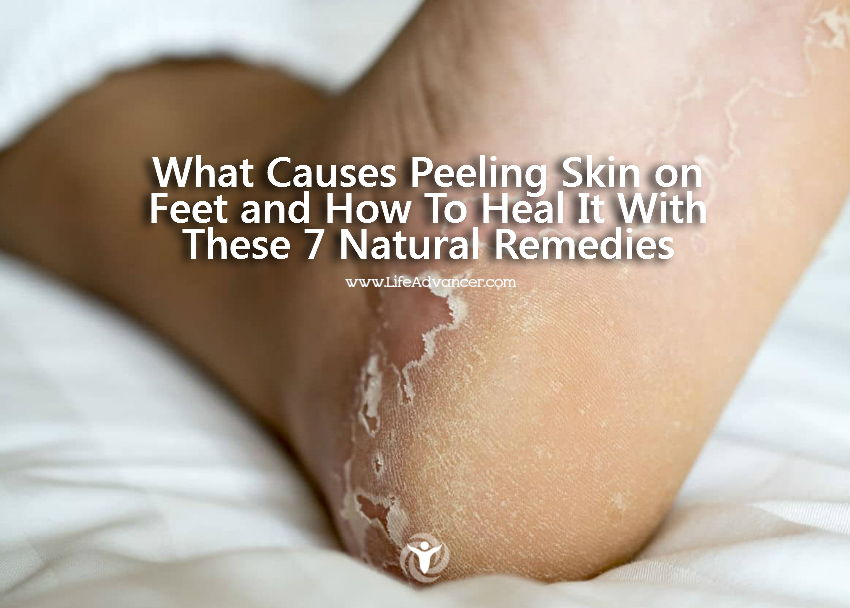 remedy for peeling skin on feet