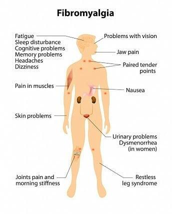 What Causes Fibromyalgia Symptoms