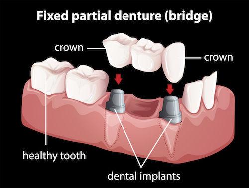dental bridge - dental implant