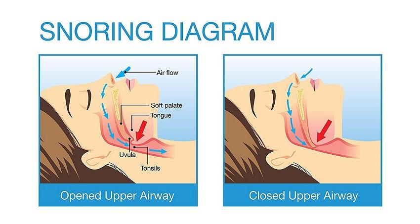 Snoring Diagram - Upper Airway