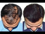hair transplant hairline design